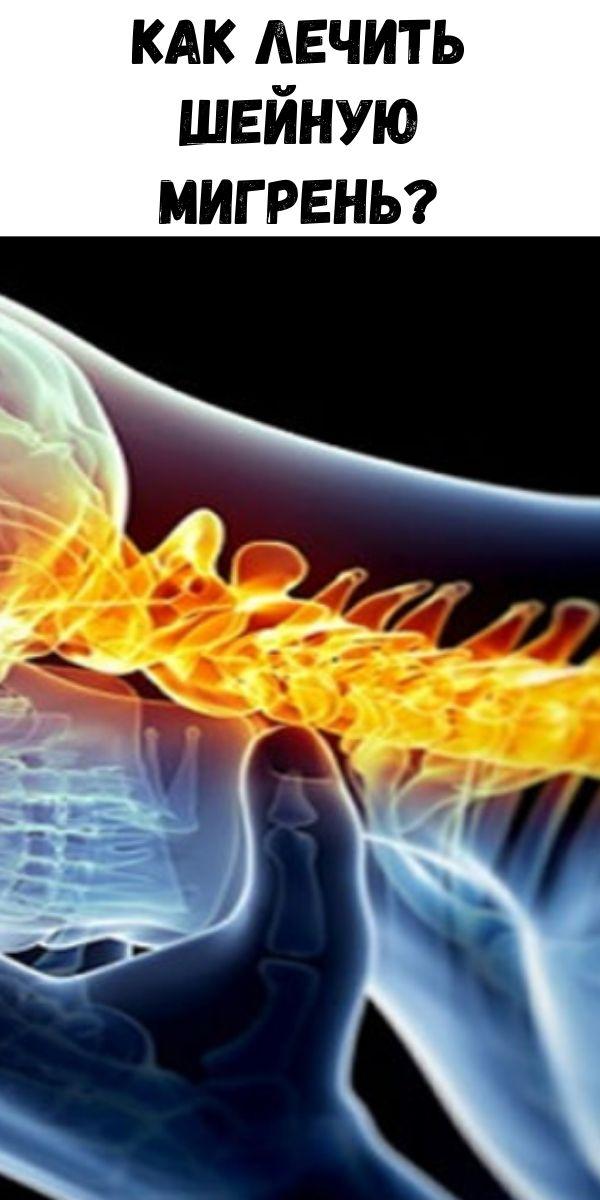 Как лечить шейную мигрень?