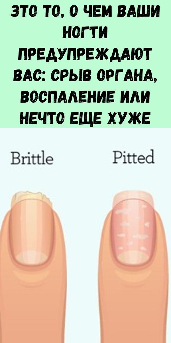 Это то, о чем ваши ногти предупреждают вас: срыв органа, воспаление или нечто еще хуже