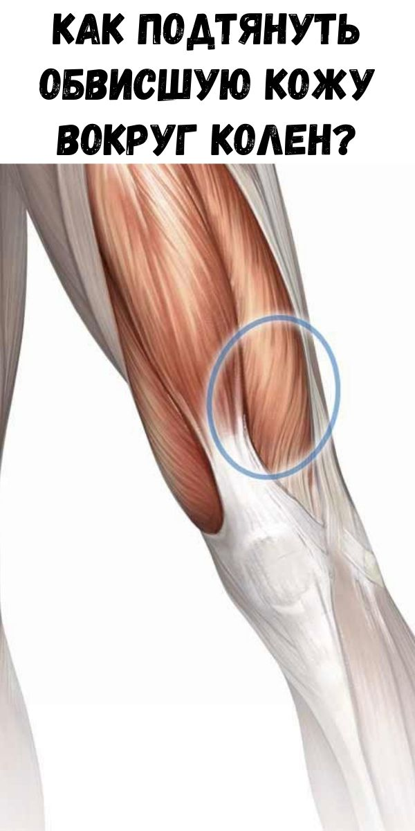 Как подтянуть обвисшую кожу вокруг колен?