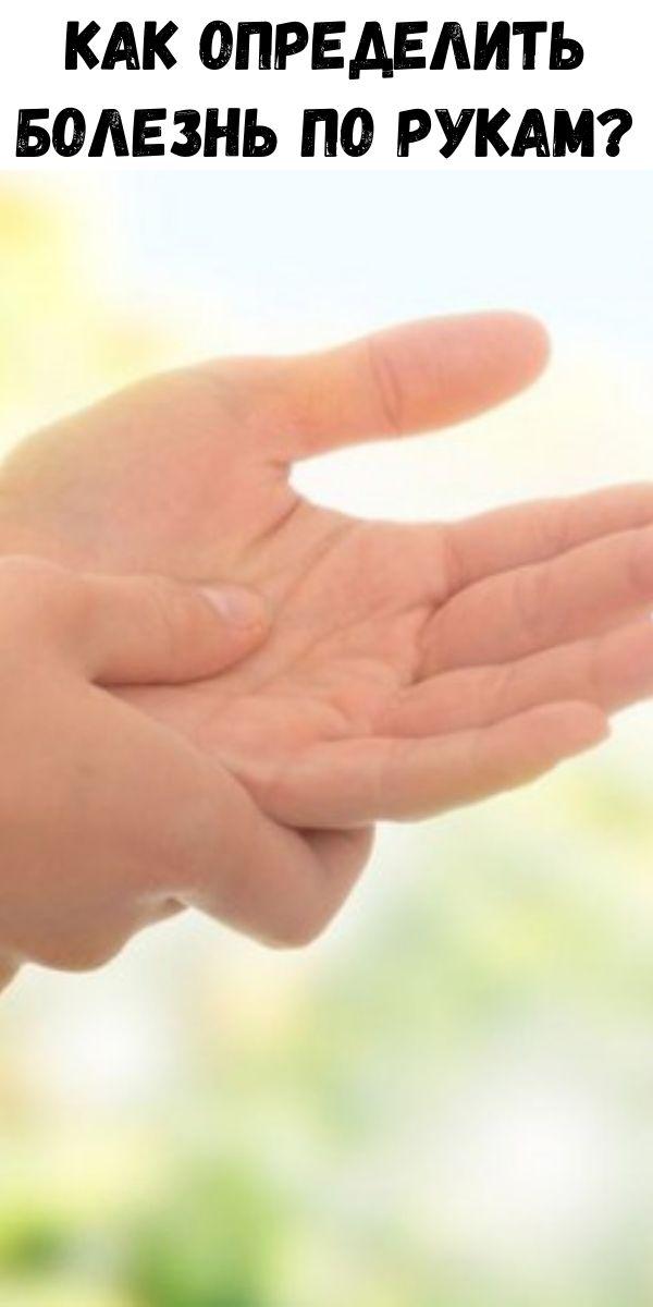 Как определить болезнь по рукам?