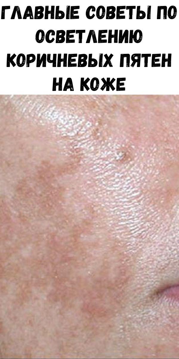 Главные советы по осветлению коричневых пятен на коже
