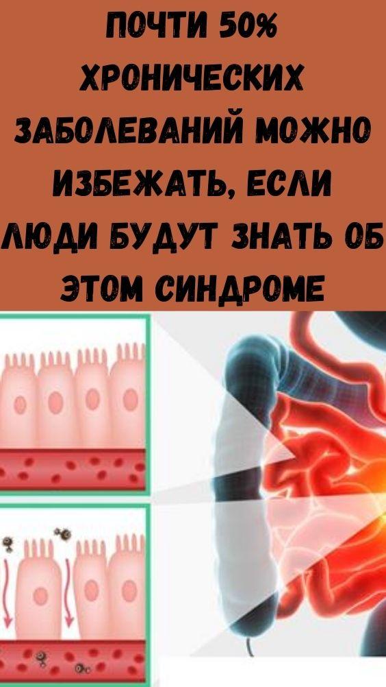 Почти 50% хронических заболеваний можно избежать, если люди будут знать об этом синдроме