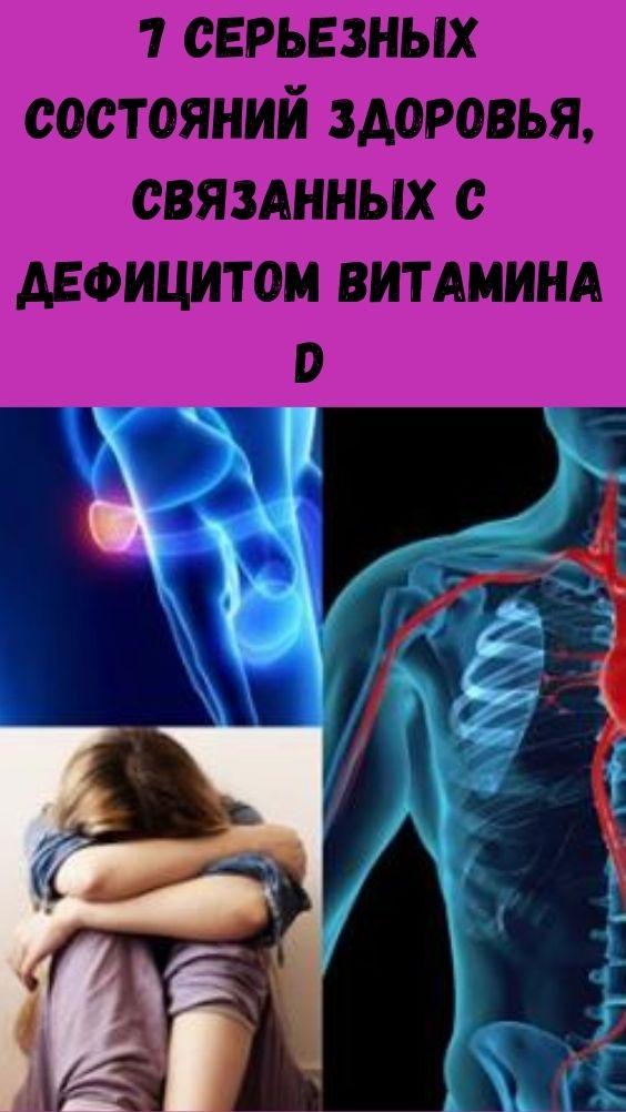 7 серьезных состояний здоровья, связанных с дефицитом витамина D