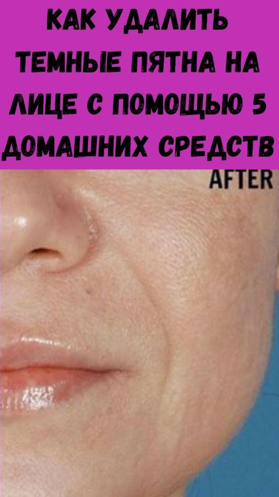 Как удалить темные пятна на лице с помощью 5 домашних средств
