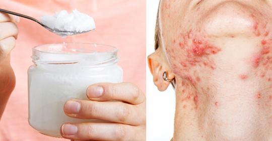 Жирная кислота, которая борется с кандидой, дрожжевыми инфекциями и акне