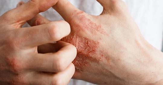 8 фактов, которые ваши руки могут рассказать о вашем здоровье