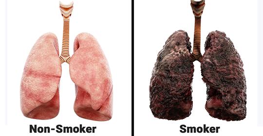 Медсестра объясняет, что ежедневное курение делает с легкими