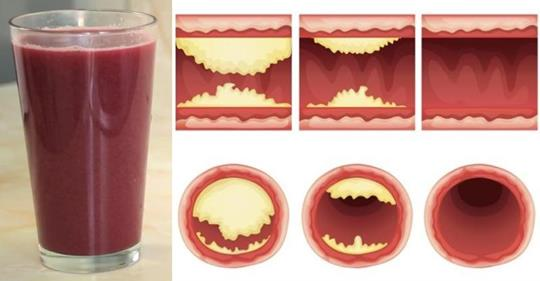 Этот вкусный сок прочистит артерии и предотвратит сердечные заболевания!