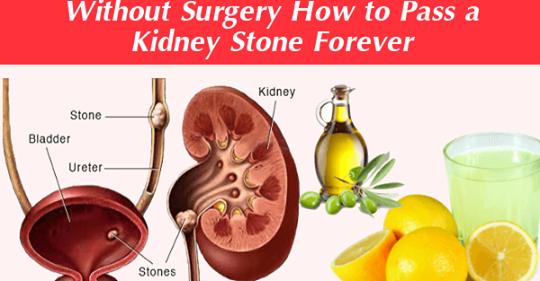 Как устранить камень в почках навсегда в течение 24 часов без хирургии (100% действие)
