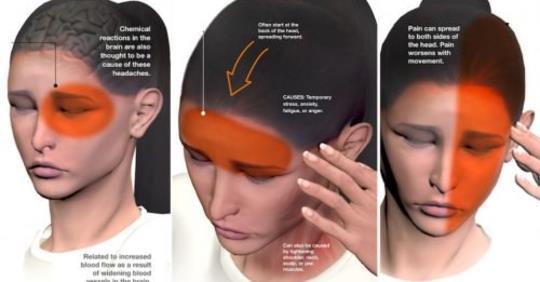 Если вы страдаете от головных болей и мигрени, то у вас на 40% более высокий риск этой проблемы со здоровьем