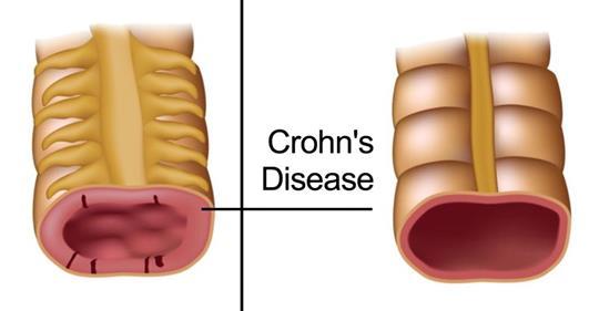 5 ранних симптомов болезни Крона