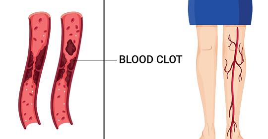 10 симптомов раннего предупреждения о сгустках в крови, которые вы никогда не должны игнорировать