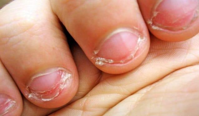 Исследователи объясняют, что о вас говорит то, что вы грызете ногти