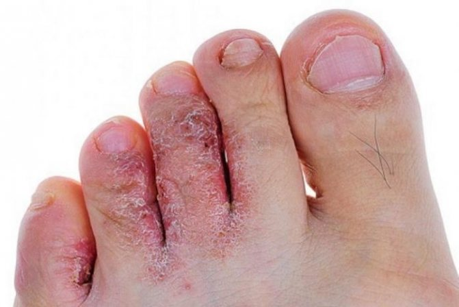 Попрощайтесь с грибковыми инфекциями: замочите ноги в...
