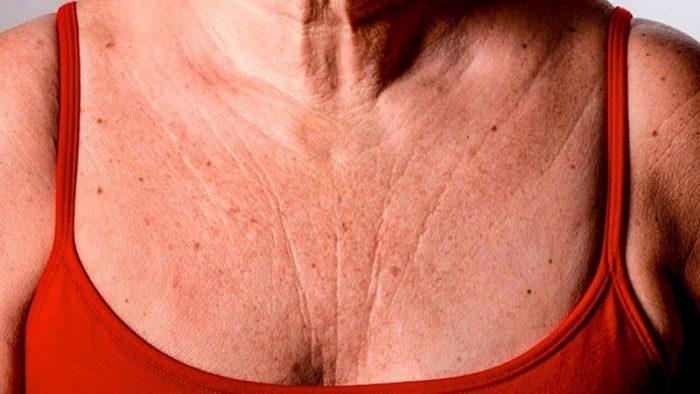 Натуральное средство для эластичной кожи: больше никаких складок и морщин