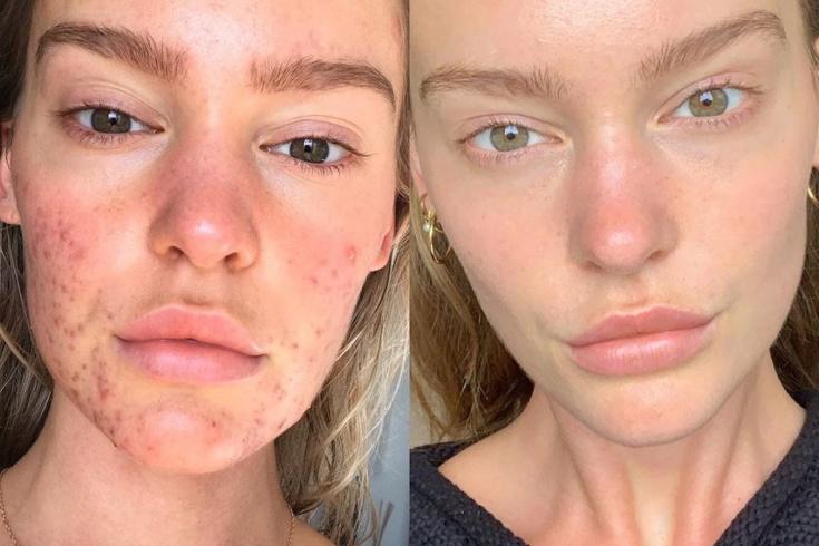 Чтобы кожа была идеальной: 10 вредных и полезных продуктов